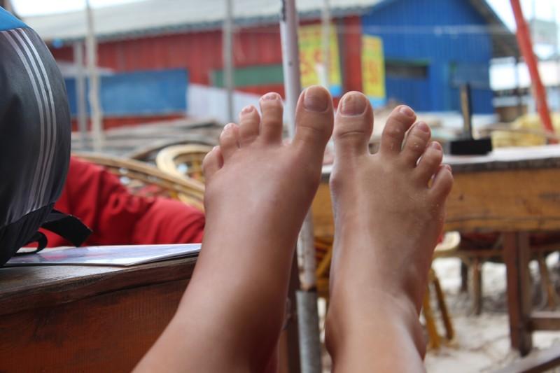 Meu pé esquerdo inchado, após picada de aranha