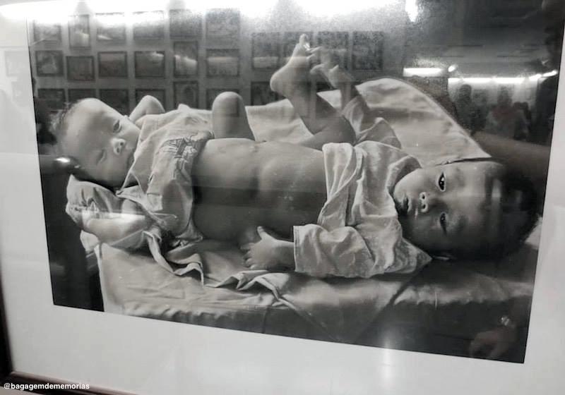 Crianças nascidas com deformidades devido ao Agent Orange